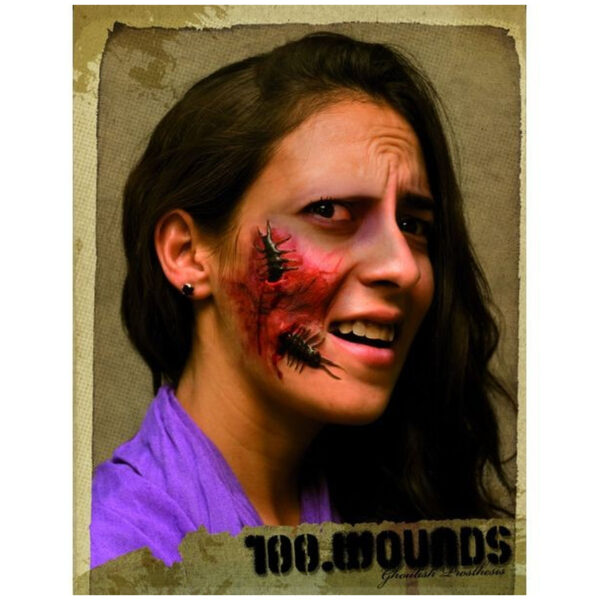 Application-100-wounds