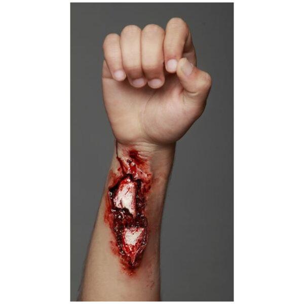 Application-broken-arm